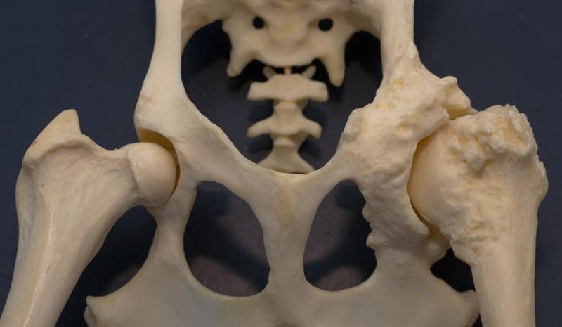 Durch Arthrose verändertes Hüftgelenk zeigt deutlich die Verknöcherungen.